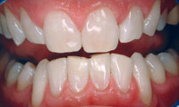 BriteSmile Teeth Whitening After