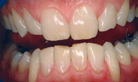 BriteSmile Teeth Whitening Before